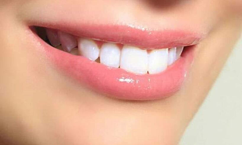 Clareamento dental com fita